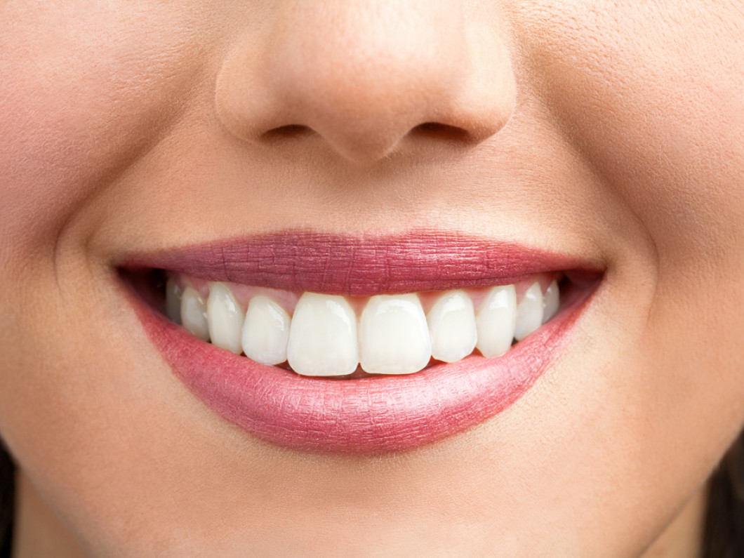 Teeth whitening services in Albany, New York
